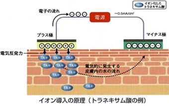 シミ・肝斑へのアプローチにはトラネキサム酸イオン導入